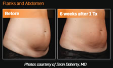 gcmp-body-contouring-sculpsure-before-after-1