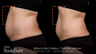 gcmp-body-contouring-sculpsure-before-after-a2