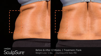 gcmp-body-contouring-sculpsure-before-after-a1